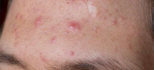 Aknebehandlung in Wien bei Hautarzt Prof. Dr. Okamoto