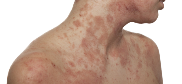 Atopische Dermatitis-Neurodermitis - Behandlung bei Dr. Okamoto, Hautarzt in Wien
