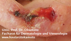 Squameous cell carcinoma (SCC) of the skin