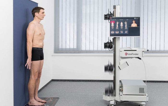 full-body photography (total body scan for early detection of melanomas by dermatologist Dr. Okamoto